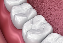 Animation of tooth-colored filling placement
